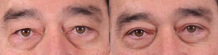 Upper Eyelids Patient 2 Photos | Dr. Sudeep Roy, RefinedMD
