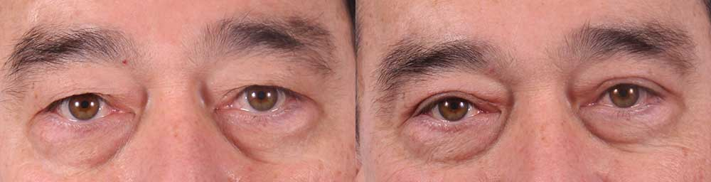 Upper Eyelids Patient 2 Photos   Dr. Sudeep Roy, RefinedMD