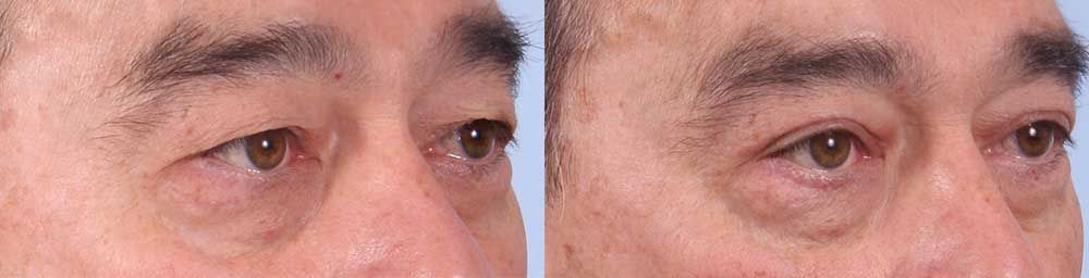 Upper Eyelids Patient 2 Photos | Dr. Sudeep Roy, RefinedMD