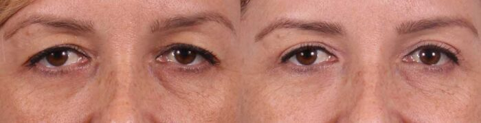 Upper Eyelids Patient 4 Photos | Dr. Sudeep Roy, Refined Dermatology