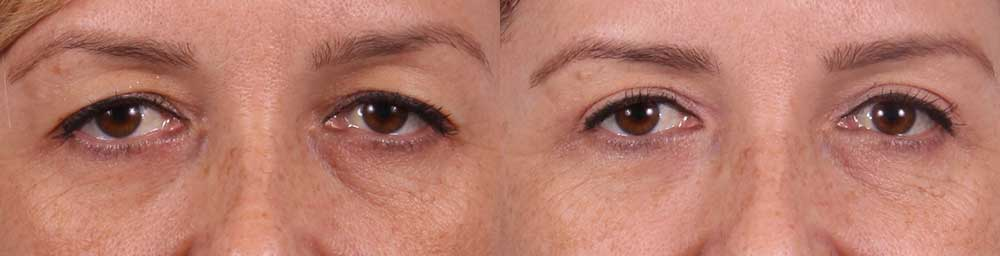 Upper Eyelids Patient 4 Photos | Dr. Sudeep Roy, RefinedMD