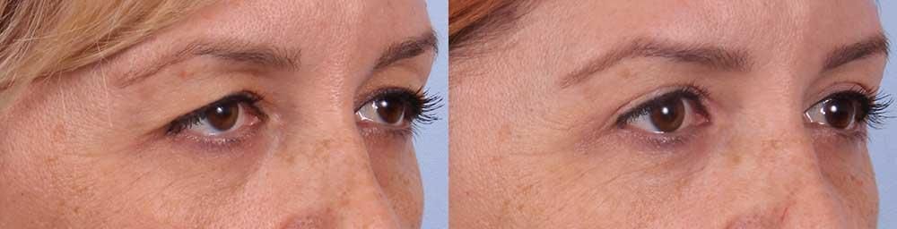 Upper Eyelids Patient 4 Photos | Dr. Sudeep Roy, RefinedMD