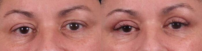 Upper Eyelids Patient 5 Photos | Dr. Sudeep Roy, Refined Dermatology