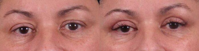 Upper Eyelids Patient 5 Photos | Dr. Sudeep Roy, RefinedMD