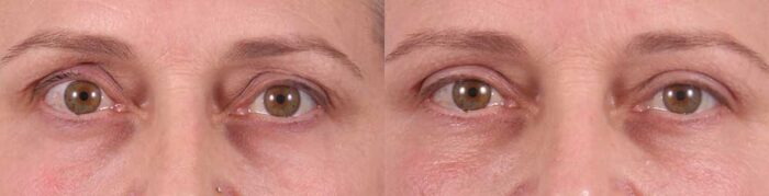 Upper Eyelids Patient 6 Photos | Dr. Sudeep Roy, Refined Dermatology