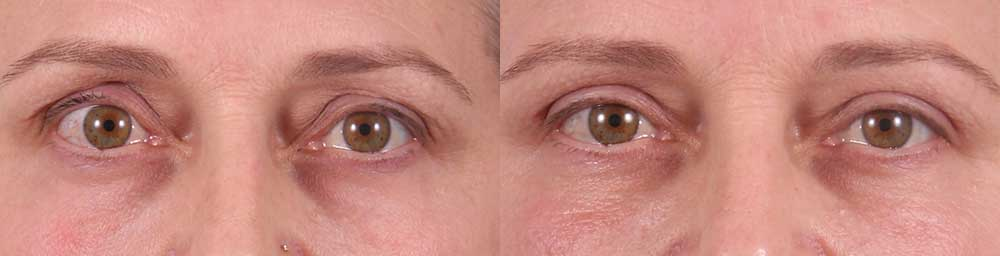 Upper Eyelids Patient 6 Photos | Dr. Sudeep Roy, RefinedMD