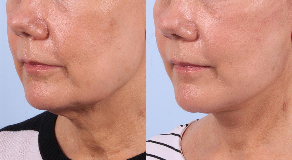 Facelift Patient 13 | Dr. Sudeep Roy | RefinedMD, Los Gatos, CA