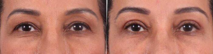 Upper Eyelids Patient 7 | Dr. Sudeep Roy | RefinedMD, Los Gatos, CA