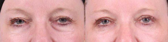 Upper Eyelids Patient 10   Dr. Sudeep Roy, RefinedMD