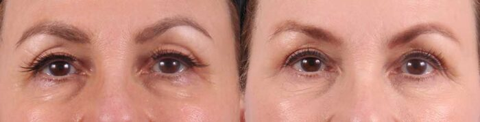 Upper and Lower Eyelids Patient 8 Photos   Dr. Sudeep Roy, RefinedMD