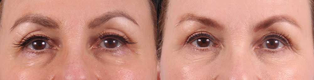 Upper and Lower Eyelids Patient 8 Photos | Dr. Sudeep Roy, RefinedMD