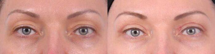 Upper Eyelids Patient 9 Photos   Dr. Sudeep Roy, RefinedMD
