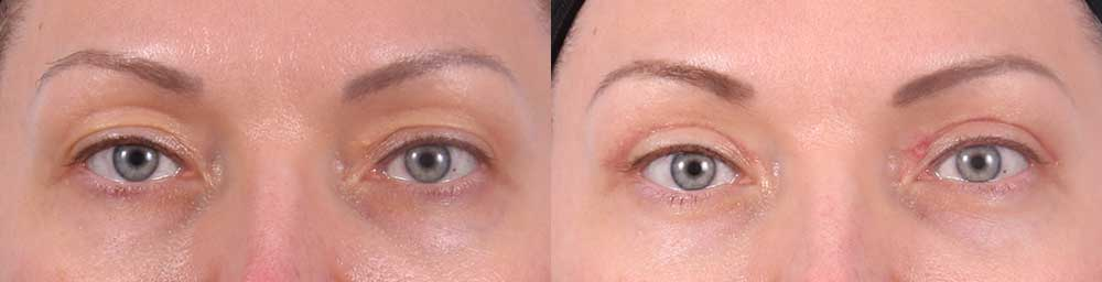 Upper Eyelids Patient 9 Photos | Dr. Sudeep Roy, RefinedMD