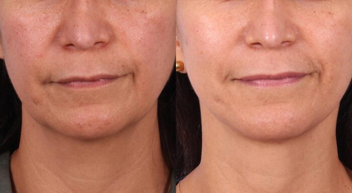 Facelift Patient 14 Photos | Dr. Sudeep Roy, RefinedMD