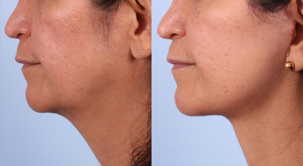 Facelift Patient 14 Photos | Dr. Sudeep Roy, RefinedMD