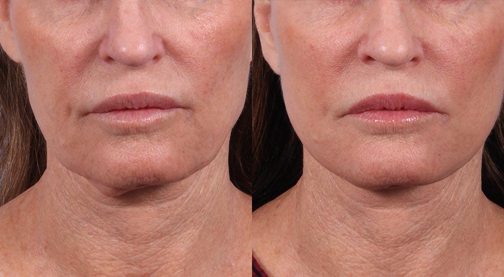 Facelift Patient 15 Photos | Dr. Sudeep Roy, RefinedMD
