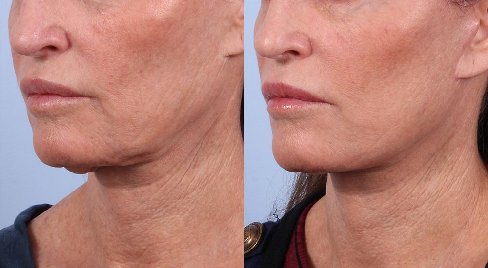 Facelift Patient 15 Photos | Dr. Sudeep Roy, RefinedMD