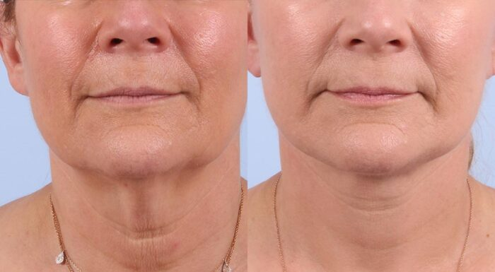 Facelift Patient 16 Photos | Dr. Sudeep Roy, RefinedMD