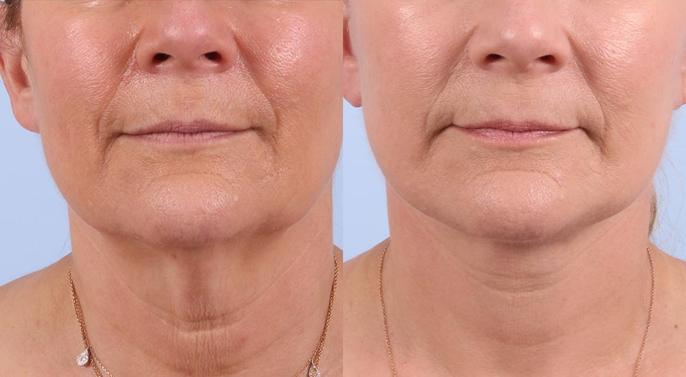 Facelift Patient 16 Photos | Dr. Sudeep Roy, RefinedMD