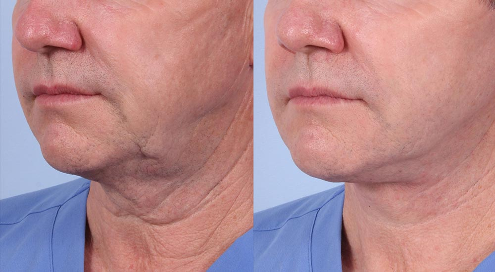 Facelift Patient 17 Photos | Dr. Sudeep Roy, RefinedMD