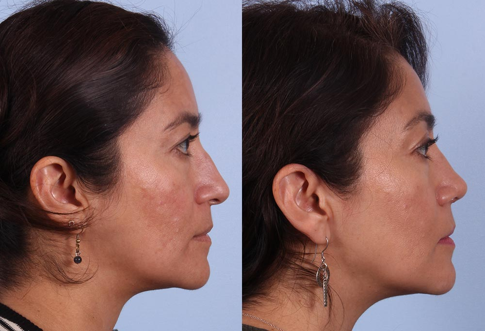 Why Right Now is the BEST Time for Rhinoplasty | RefinedMD, Los Gatos