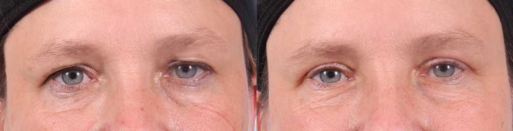 Upper Eyelids Patient 11