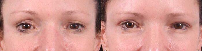 Upper Eyelids Patient 12