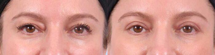 Upper Eyelids Patient 13