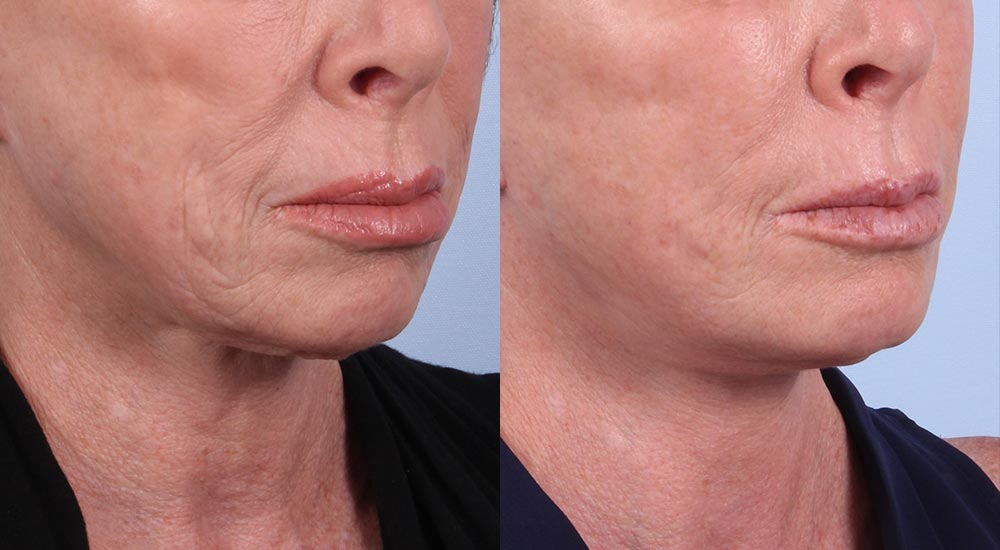 Facelift Patient 21