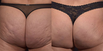 Cellfina Before/After Photo | RefinedMD Cellulite Treatment