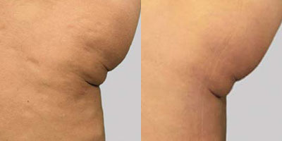 Exilis Before/After Photo | RefinedMD Cellulite Treatment
