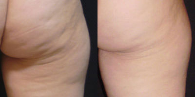 Zwave Before/After Photo | RefinedMD Cellulite Treatment