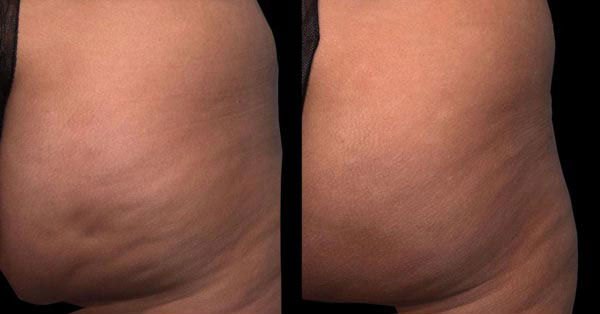 Qwo Before/After Photo | RefinedMD Cellulite Treatment