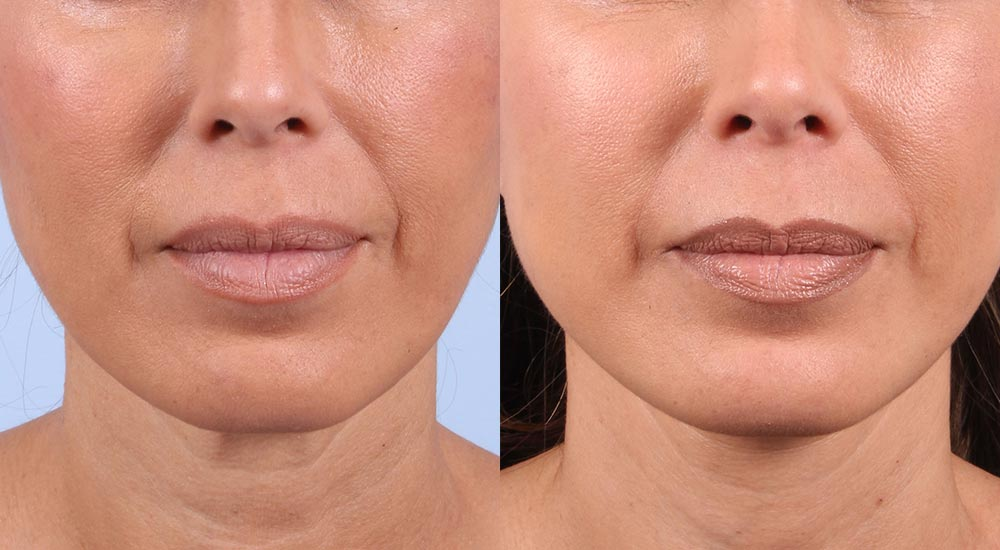 Facelift Patient 29 Photos | Dr. Sudeep Roy, RefinedMD