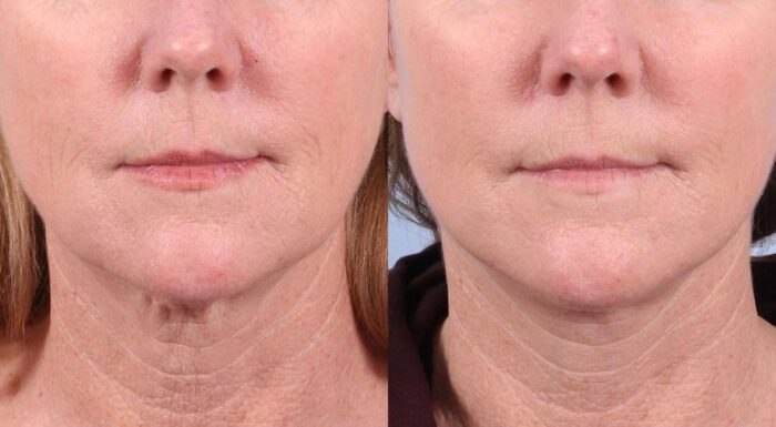 Facelift Patient 30 Photos | Dr. Sudeep Roy, RefinedMD