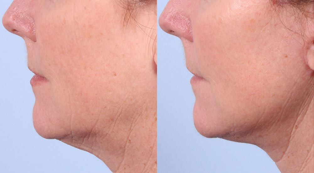 Facelift Patient 30 Photos | Dr. Sudeep Roy, RefinedMD