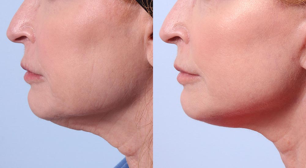 Facelift Patient 32 | Dr. Sudeep Roy | RefinedMD, Los Gatos