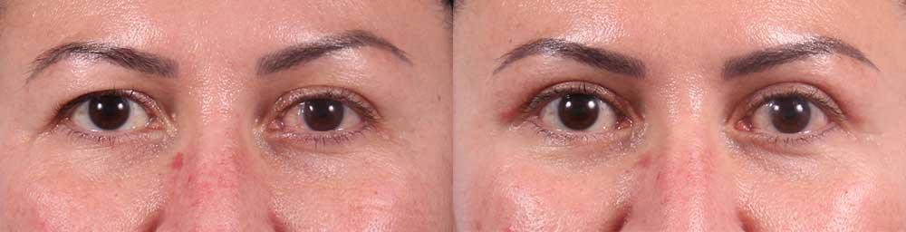 Upper Eyelids Patient 14