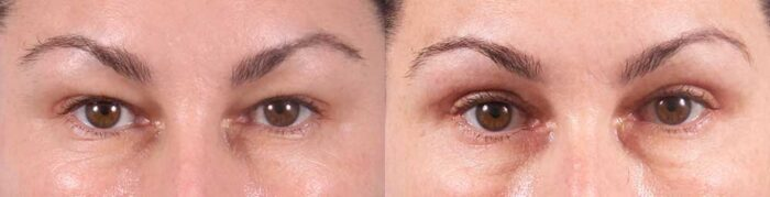 Upper Eyelids Patient 15 Photos   Dr. Sudeep Roy, RefinedMD