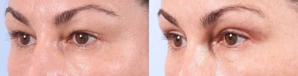Upper Eyelids Patient 15 Photos | Dr. Sudeep Roy, RefinedMD