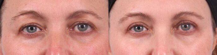 Upper Eyelids Patient 16 Photos   Dr. Sudeep Roy, RefinedMD