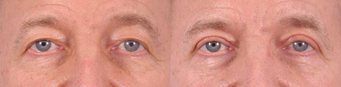 Upper Eyelids Patient 17 Photos   Dr. Sudeep Roy, RefinedMD