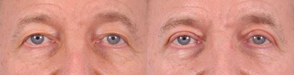 Upper Eyelids Patient 17 Photos | Dr. Sudeep Roy, RefinedMD