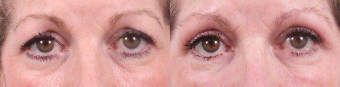 Upper Eyelids Patient 18 Photos   Dr. Sudeep Roy, RefinedMD