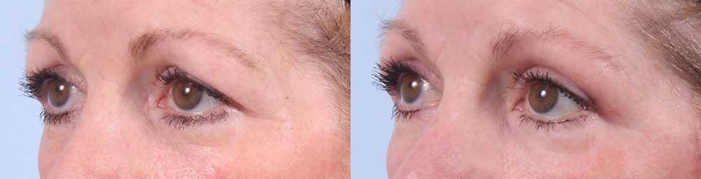 Upper Eyelids Patient 18 Photos | Dr. Sudeep Roy, RefinedMD