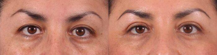 Upper Eyelids Patient 19 Photos   Dr. Sudeep Roy, RefinedMD