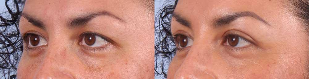 Upper Eyelids Patient 19 Photos | Dr. Sudeep Roy, RefinedMD