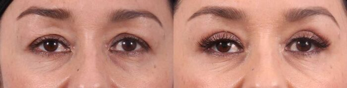Upper Eyelids Patient 20 Photos   Dr. Sudeep Roy, RefinedMD