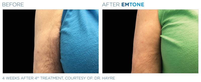 Emtone Skin Tightening and Cellulite | RefinedMD | Los Gatos